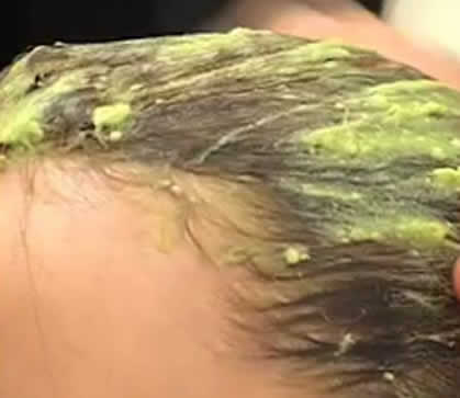 Quelles vitamines boire aux problèmes avec les cheveux